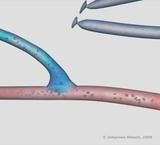Medizinische Animation
